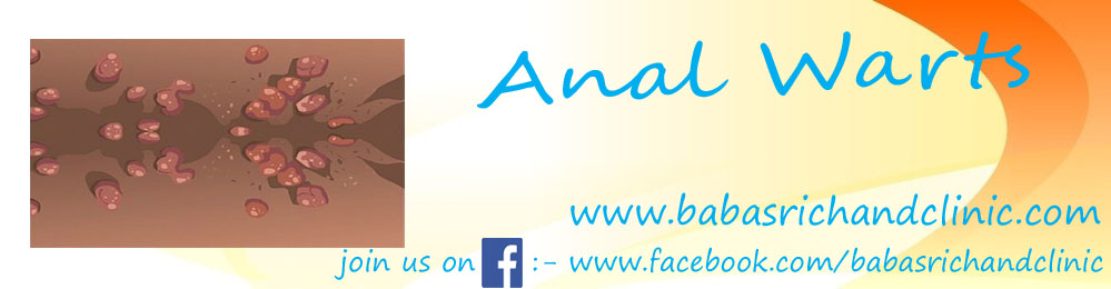 Anal Warts1