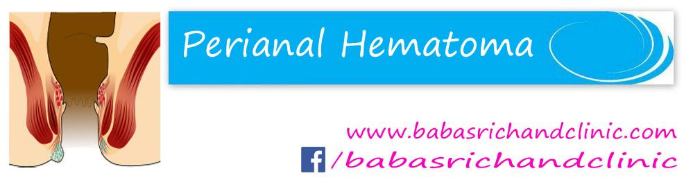 Perianal hematoma